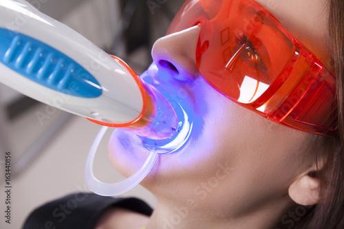 Fototapeta Tooth whitening with ultraviolet method