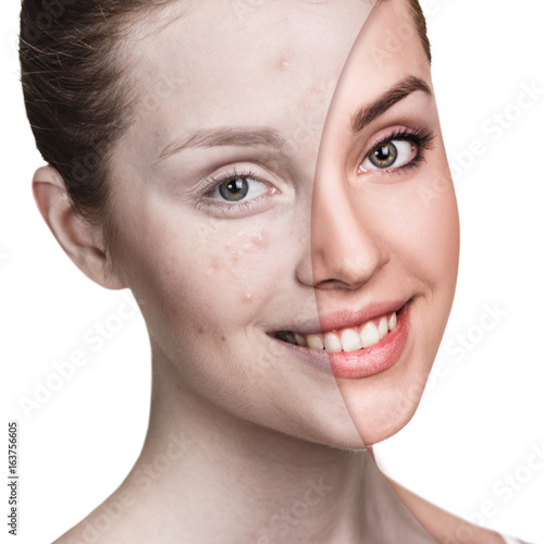 Poster Girl with acne before and after treatment