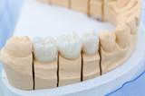 Im Dentallabor: Prothesensattel mit Zahnersatz - 165148447