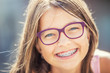 Quadro Happy smiling girl with dental braces and glasses. Young cute caucasian blond girl wearing teeth braces and glasses