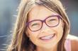 Leinwandbild Motiv Happy smiling girl with dental braces and glasses. Young cute caucasian blond girl wearing teeth braces and glasses