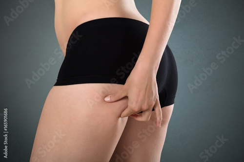 Female With Perfect Body Checking Cellulite