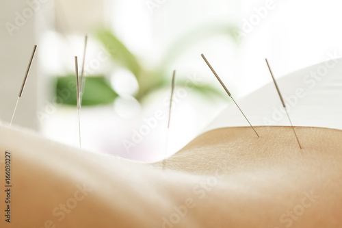 Leinwanddruck Bild Female back with steel needles during procedure of acupuncture therapy