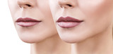 Lips of adult woman before and after augmentation - 168733233