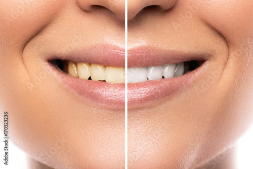 Comparison after teeth whitening