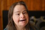 portrait of young adult woman with down syndrome - 174091457