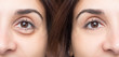 Woman eye before and after cosmetic treatment with and without eye bag