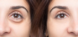 Woman eye before and after cosmetic treatment with and without eye bag - 174775290