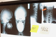 Images of skull and spine with notes at x-ray film viewer. Diagnosis,treatment planning