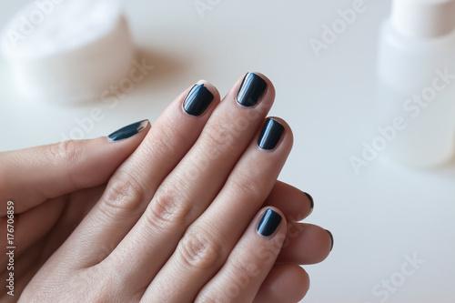 Fotobehang Manicure Shabby dark blue manicure. Threadbare nail polish. Woman hands on white table