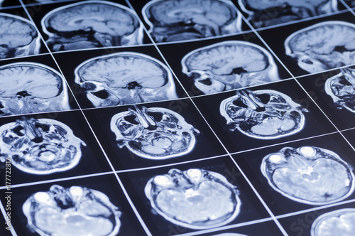 Film with pictures of the brain. MRI Poster