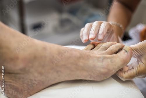 Fotobehang Pedicure medico podologo cura piede paziente anziano