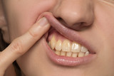 Fototapety Yellow is not even and crooked teeth of a young woman