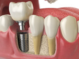 Anatomy of healthy teeth and tooth dental implant in human denturra. - 183186695