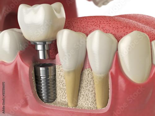 Anatomy of healthy teeth and tooth dental implant in human denturra. - 183186695