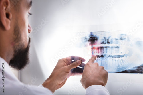 Dentist Examining Teeth X-ray - 187860093