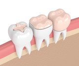 3d render of teeth with different types of dental filling - 188521230