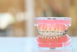 Fototapety 歯科矯正模型