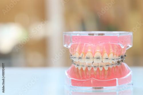 歯科矯正模型 - 188924897