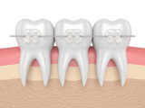 3d render of teeth with ceramic clear braces - 190331274