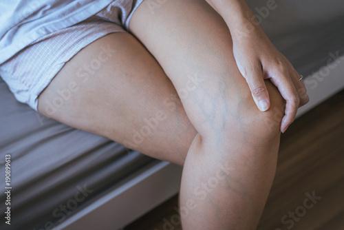Fototapeta Varicose veins on the womans leg