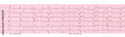 ECG with rhythm of artificial pacemaker (ventricular pacing)