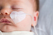 Leinwandbild Motiv Newborn baby in hospital weakened with bronchitis is getting oxygen via nasal prongs to assure oxygen saturation