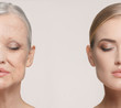 Leinwanddruck Bild - Comparison. Portrait of beautiful woman with problem and clean skin, aging and youth concept, beauty treatment