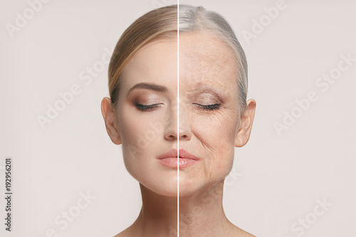 Leinwanddruck Bild Comparison. Portrait of beautiful woman with problem and clean skin, aging and youth concept, beauty treatment