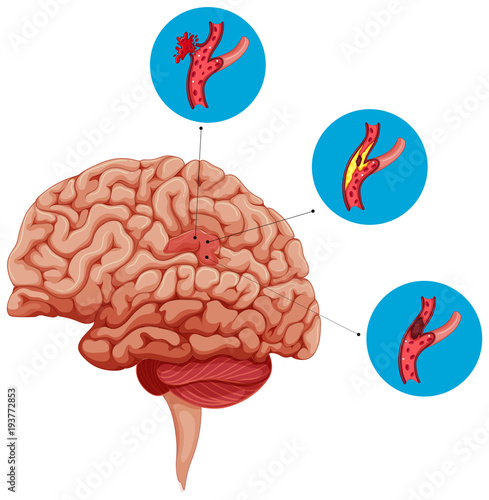 Deurstickers Kids Diagram showing problems with brain