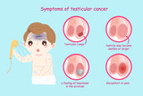 man with testicular cancer - 194072451