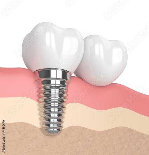 Fototapeta 3d render of implant with dental cantilever bridge
