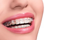 Braces on Teeth. Dental Braces Smile. Orthodontic Treatment. Closeup Smiling Face with Braces. Isolated on White Background.. - 196907414