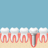 Row of teeth with dental implant - teeth prosthetics scheme, gum cut - 197220878