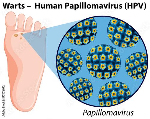 Fotobehang Kids Diagram showing human papillomavirus