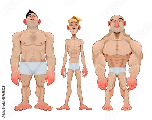 Aluminium Kinderkamer Three types of caricatural male anatomies