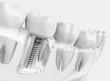 Leinwanddruck Bild - Tooth human implant