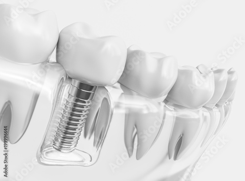Tooth human implant  - 199996644