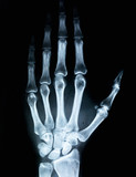 X-ray of human hand - 200845472