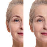 Middle aged woman face before and after cosmetic procedure. Plastic surgery concept. - 202215697