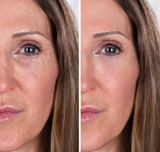Woman With Before And After Rejuvenation - 203477406