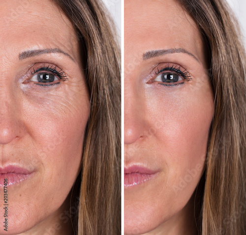 Foto Murales Woman With Before And After Rejuvenation