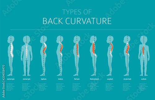 Types of back curvature. Medical desease infographic