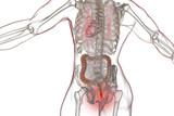 Hemorrhoids treatment and prevention concept, 3D illustration - 207449237