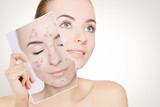 portrait of woman with clean skin holding portrait with pimpled skin - 207936829