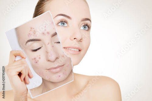 portrait of woman with clean skin holding portrait with pimpled skin