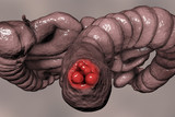 Hemorrhoids, bottom view of hemorrhoic nodules inside anus, large and small intestine are also shown, 3D illustration - 208139080