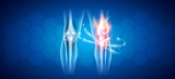 Joint problems and treatment abstract scientific background  - 208944482