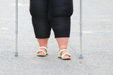 Overweight patient with crutches walking on footpath. Physiotherapy treatment and obesity problems. - 209617002