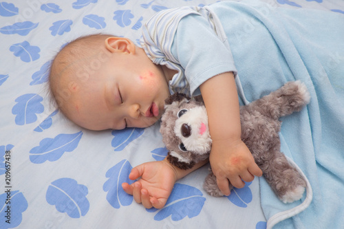 Sleeping Asian baby with red spot from mosquito bite on a cheek and hand, Cute 12 months old toddler boy taking a nap while holding dog toy on the bed - 209657438